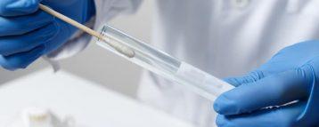 Utilizzo del test antigenico rapido in sanità pubblica, la Circolare del Ministero infiamma il dibattito. Cerchiamo di fare un po' di chiarezza sulle disposizioni